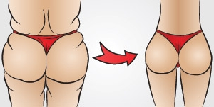butt-implants-miami-2