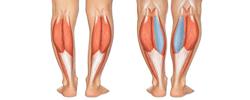 calf-implant