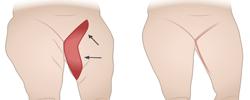 thight-lift